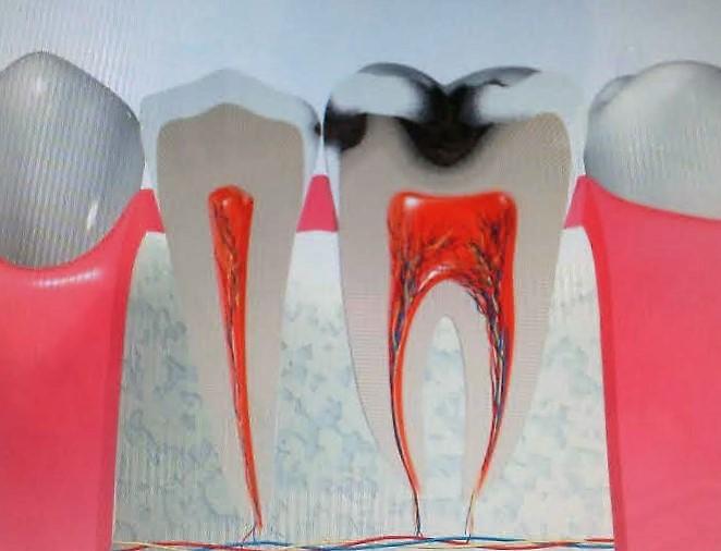 馬場ブロ虫歯3